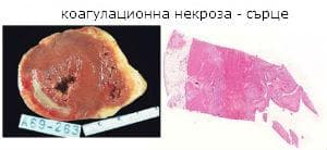 коагулационна некроза
