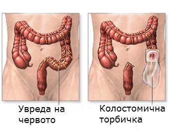 колостомия