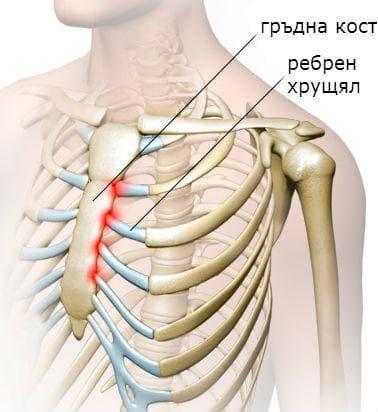 локализация на костохондрит