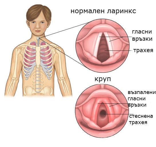 Възпаление ларинкс