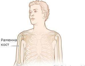 ювенилна остеохондроза