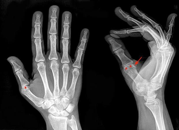 юношески пауциартикуларен артрит