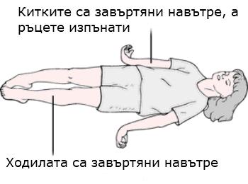 децеребрация