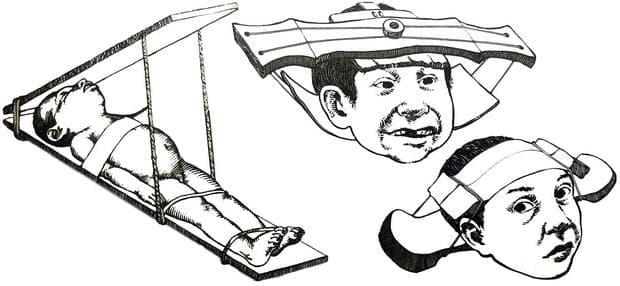 Метода за деформация на черепа на маите