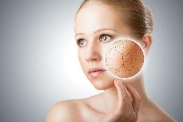 Дехидратация на кожата