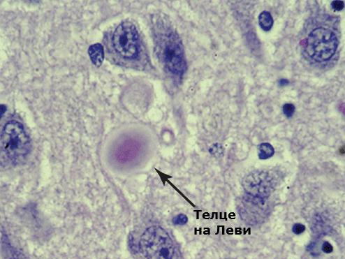 Деменция с телца на Леви