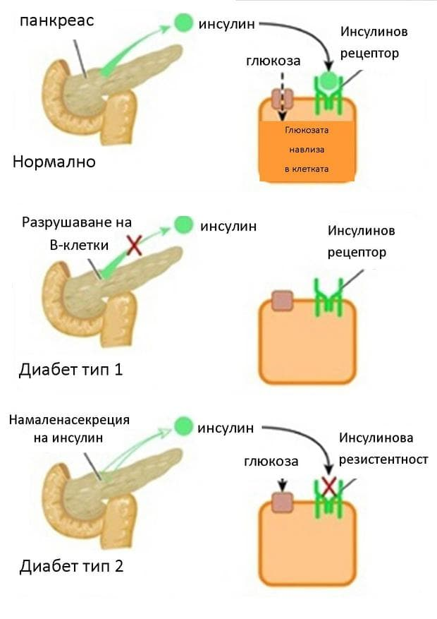 патология, свързана с инсулина