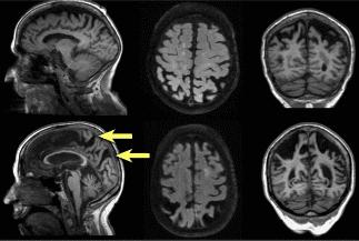 диагностика на Алцхаймеров мозък