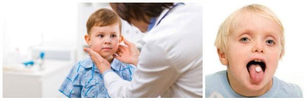 Диагноза и лечение при вроден йод-недоимъчен синдром, хипотиреоиден или микседематозен тип