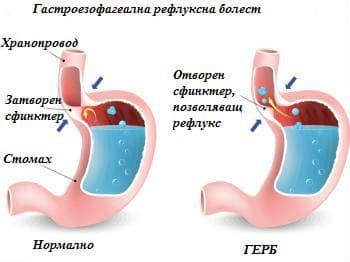 Незрял долен езофагеален сфинктер