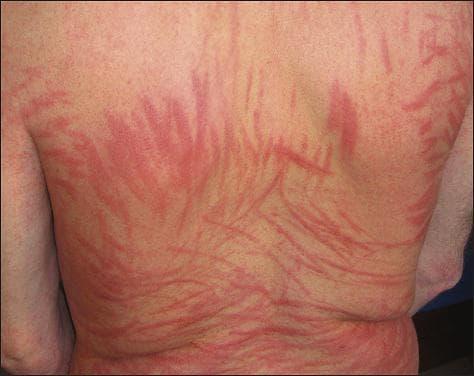 шийтаке дерматит синдром