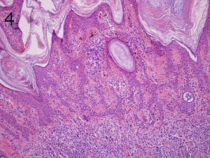 микроскопско изследване на доброкачествени меланинообразуващи тумори