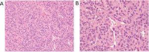 микроскопско изследване на доброкачествени тумори