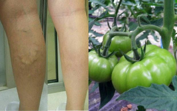 Зелени домати срещу разширени вени