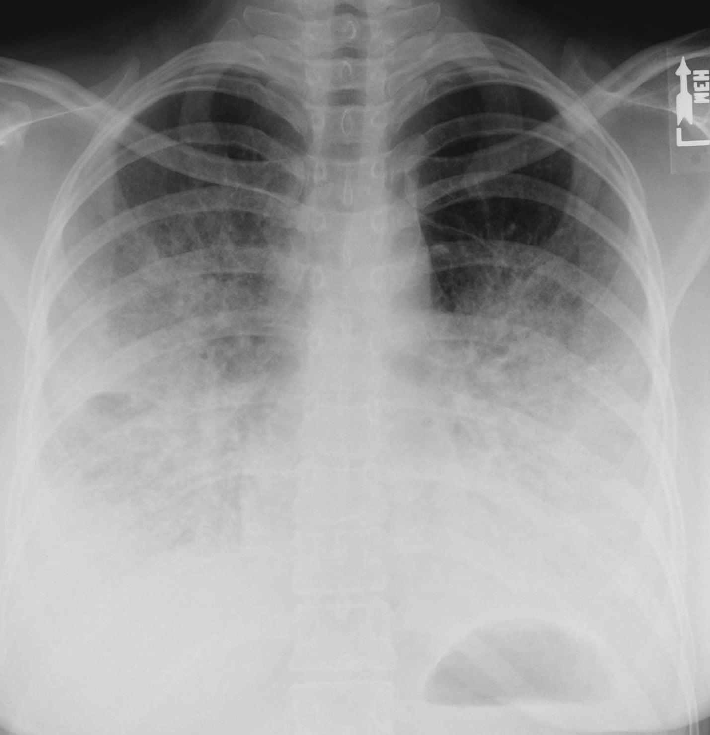 Хипостатична пневмония