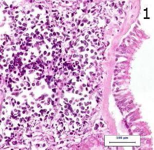 микроскопско изследване на дребноклетъчен карцином на белия дроб