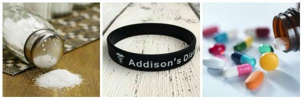 Други мерки за лечение при болест на Адисон