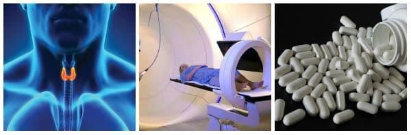 Други методи за лечение при рак на щитовидната жлеза: радиоактивен йод, химиотерапия, лъчетерапия