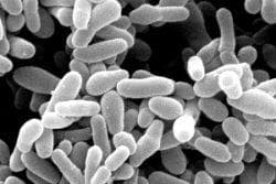 Други уточнени бактериални агенти - Gardnerella