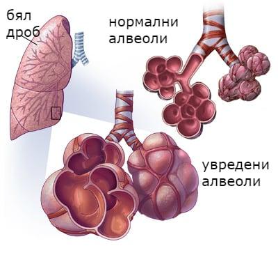 Патофизиология емфизем