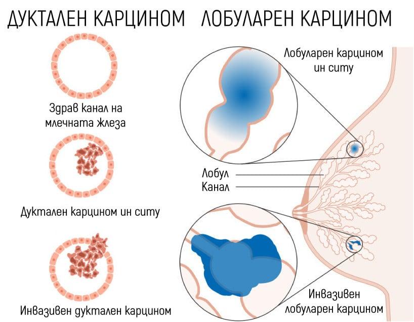 Дуктален и лобуларен карцином