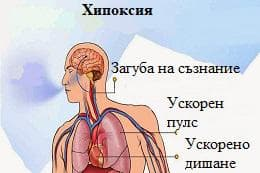 хипоксия