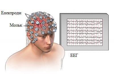 електроенцефалография