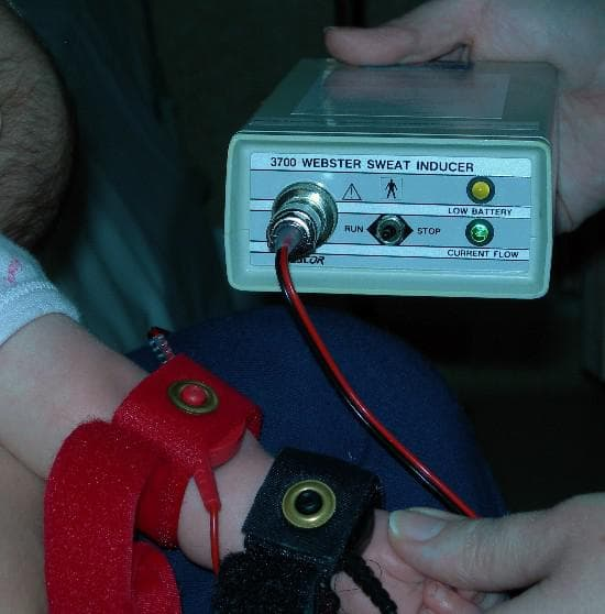 Електрическа стимулация