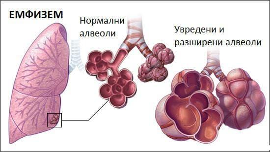 Емфизем