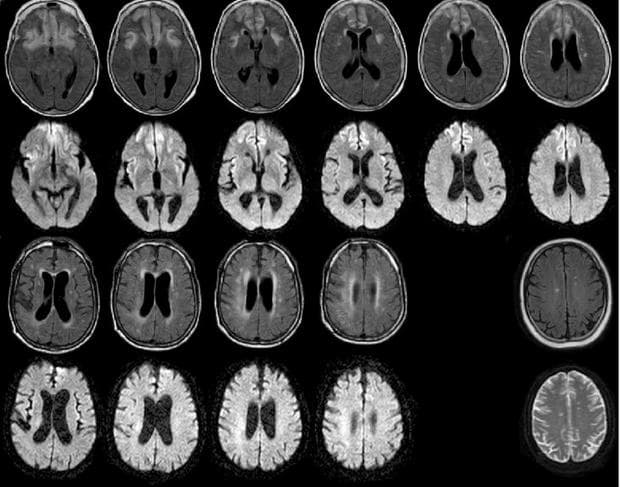 Хипогликемична енцефалопатия