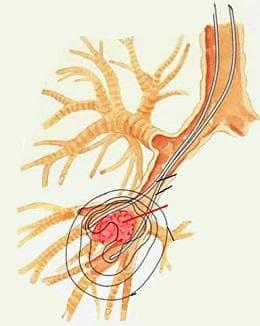 ендобронхиален тумор на белите дробове