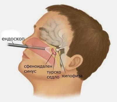 назална ендоскопия