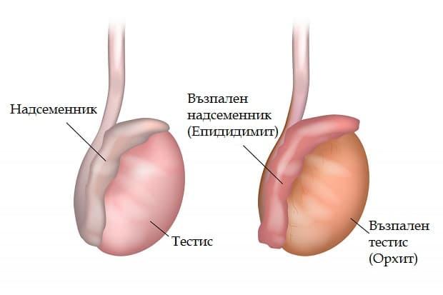 Епидидимит и орхит