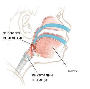 Епиглотит при деца