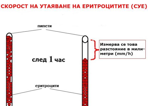 Определяне на СУЕ