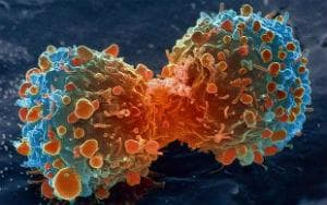 етиология на туморите
