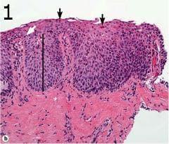 микроскопско изследване на езофагит