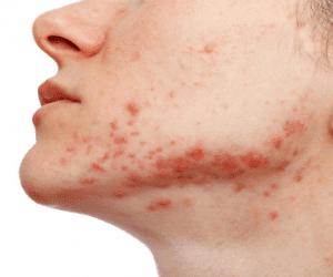 facial-acne