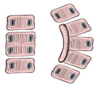 Нарушена сегментация на прешлени