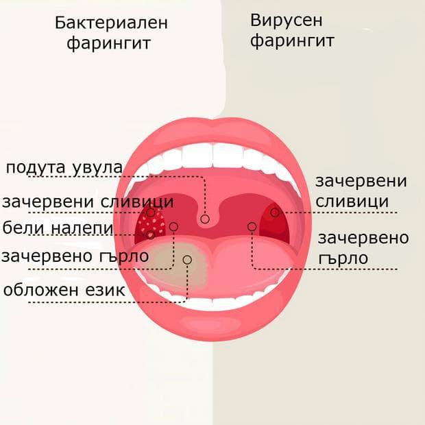 бактериален фарингит