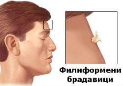 Филиформени брадавици