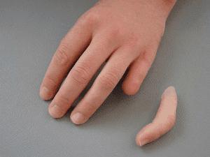протеза на пръст