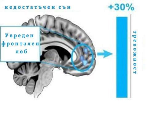 san i deinost na mozaka