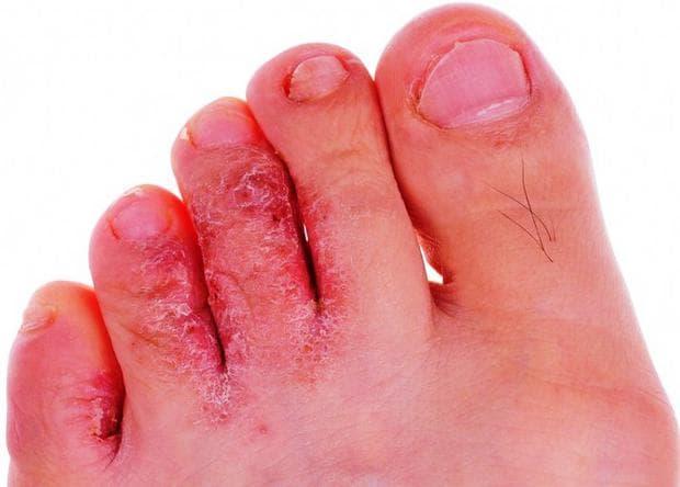 Гъбични кожни инфекции