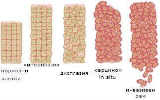 генетична карциногенеза