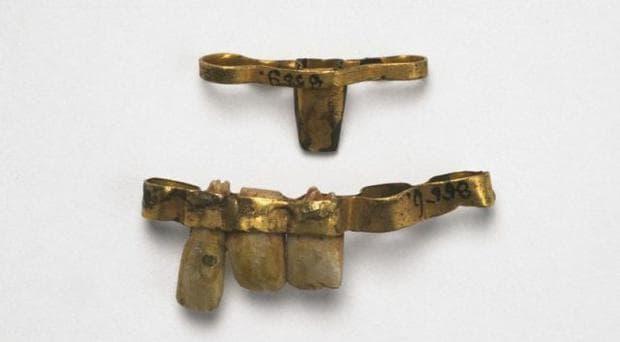 Римски дентални протези от началото на 5-ти век