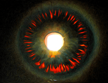 Пигментна глаукома