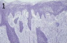 микроскопско изследване на глосит