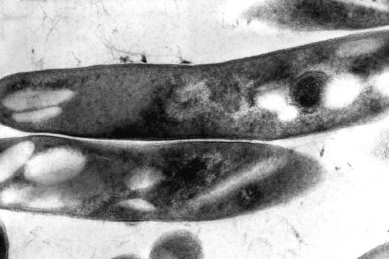 Туберкулозен бактерий