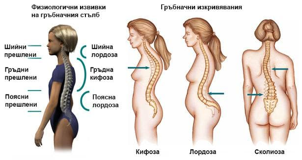 видове гърбначни изкривявания и нормални кривини на гръбнака